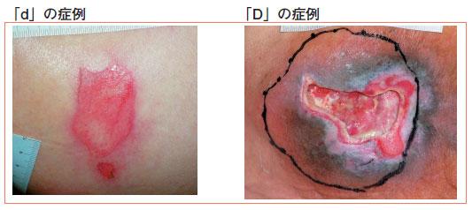 肉芽組織 - Granulation tissue ...