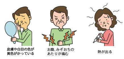 症状 胆管 癌