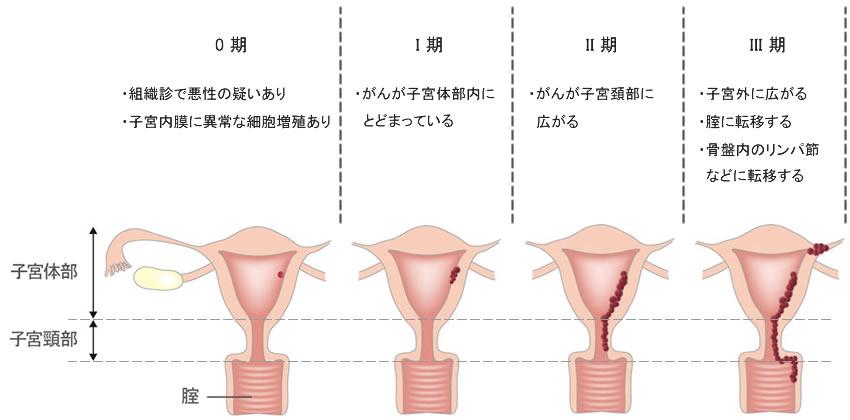 「子宮体がん」の画像検索結果