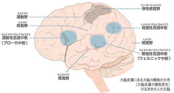 脳卒中 Minds版やさしい解説 | Mindsガイドラインライブラリ