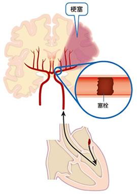 梗塞 アテローム 脳 血栓 性